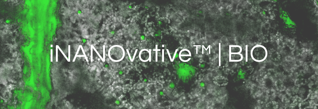 Confocal microscopy photo of iNANOvative™ | BIO nanoparticle clusters in plant tissue